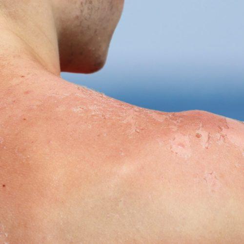 Domowe sposoby na oparzenia słoneczne
