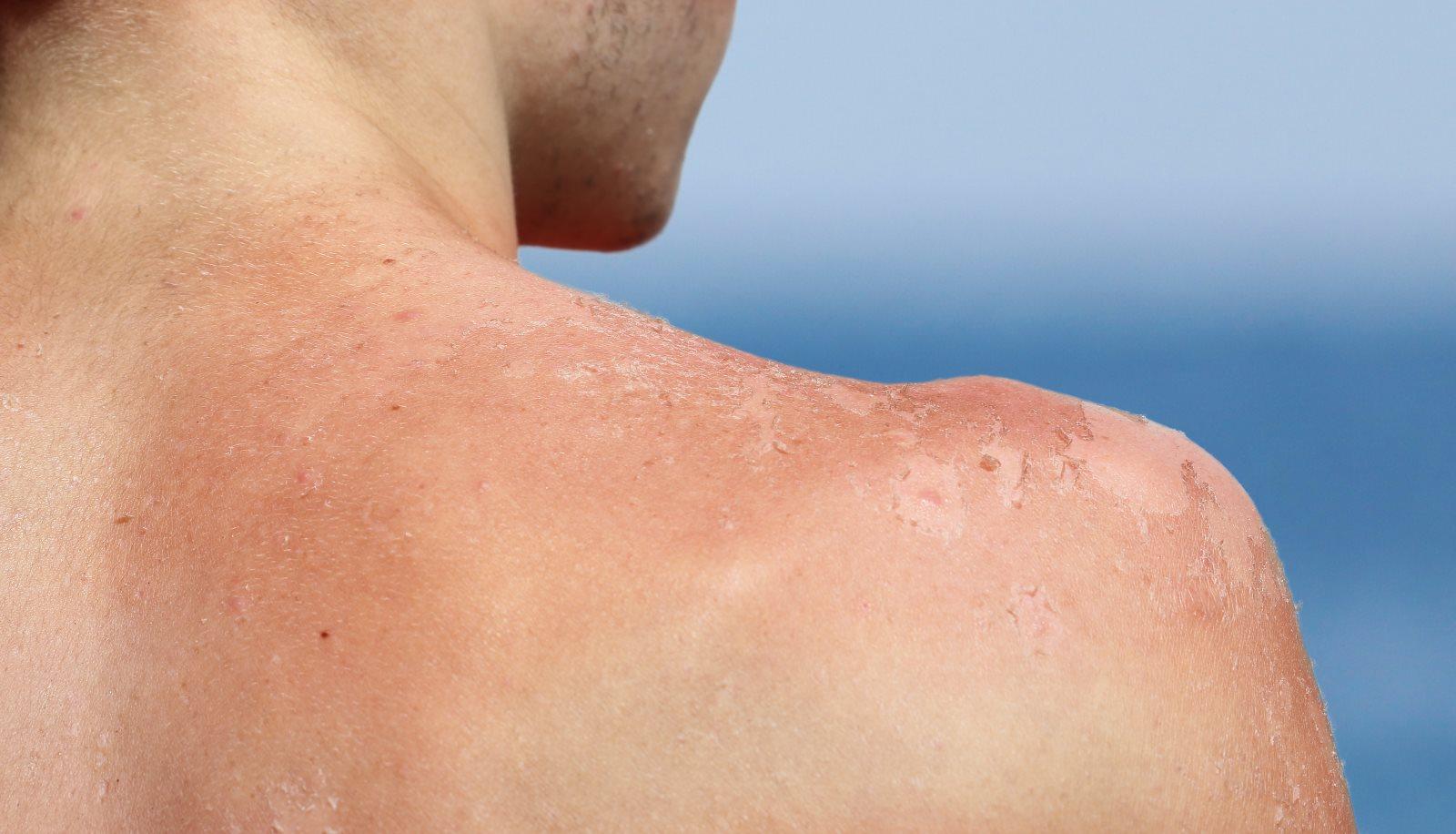 Przesadziłeś ze słońcem? 5 domowych sposobów na oparzenia słoneczne