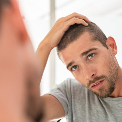 fryzura męska na zakola